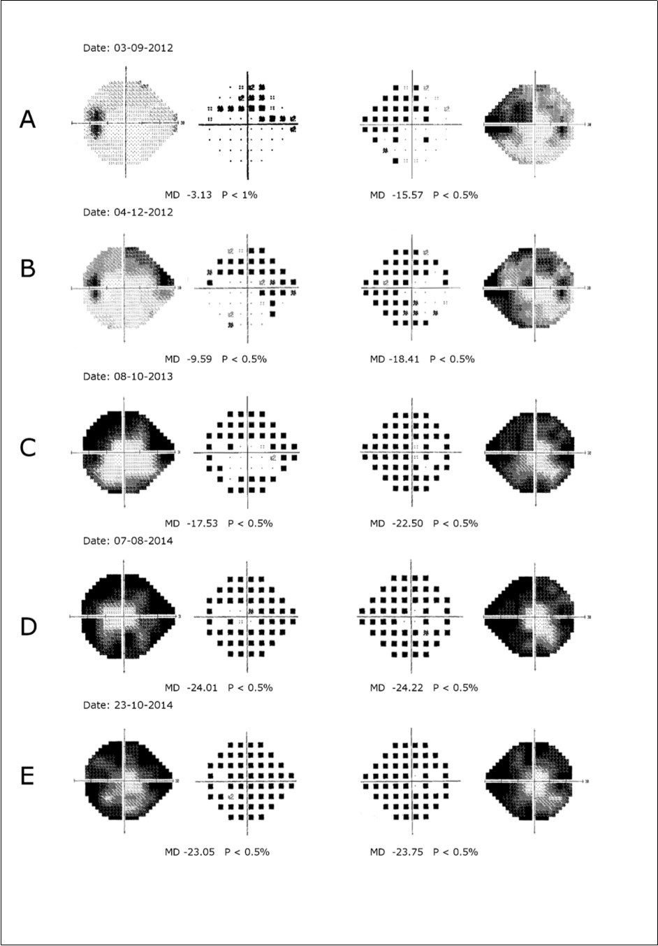 rapidly progressing visual loss associated with optic nerve head drusen  is there a role for