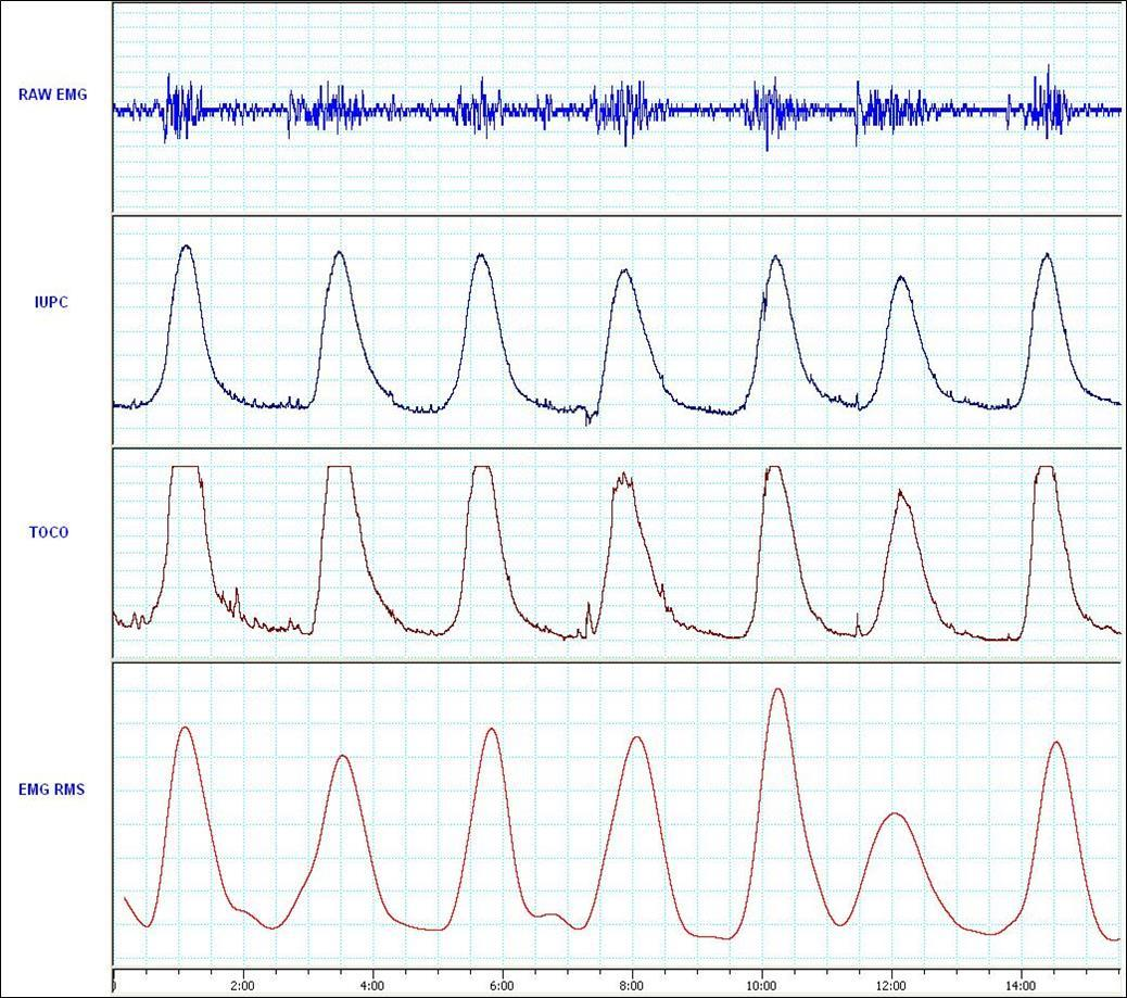 Comparing Uterine Electromyography & Tocodynamometer To Intrauterine  Pressure Catheter For Monitoring Labor - Comparing Uterine Electromyography  & Tocodynamometer To Intrauterine Pressure Catheter For Monitoring Labor -  Open Access Pub