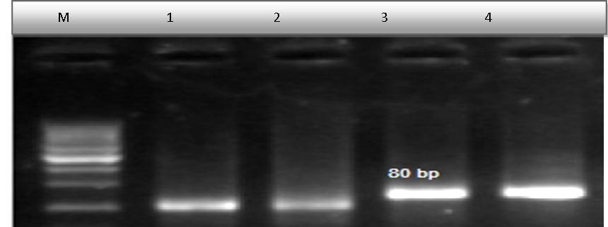 lane 2 visualized pcr negative lane 3 clear band is visualized positive pcr result for ebv gene lanes 4 is control positive for ebv gene