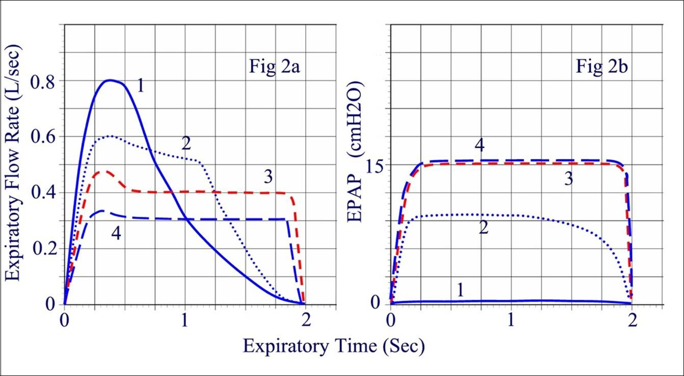 Obstructive Sleep Apnea Treatment With Epap Nasal Devices Exhaling Diagram Person Related Keywords Suggestions Areas Under The Curves All Conditions Is Equal To Exhaled Tidal Volume Which Decreases Only At Highest Level Of Resistance
