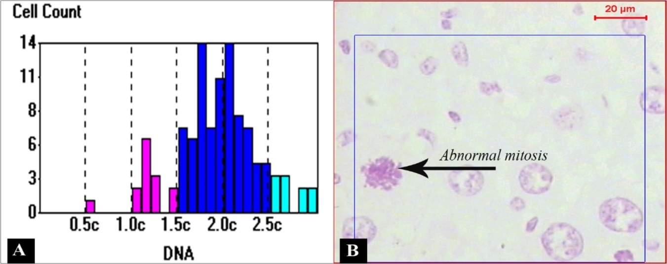 The 5-ht1a Agonist Buspirone Decreases Liver Oxidative Stress and