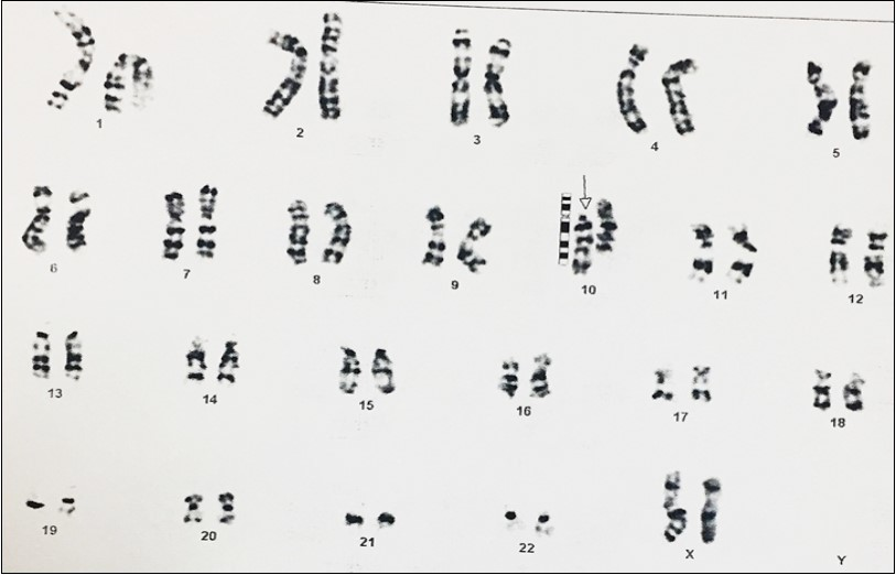 Pericentric Inversion In Chromosome 10 In A Girl Inherited